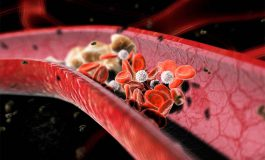 8 prawd o cholesterolu, które musisz poznać
