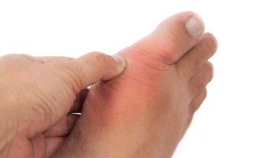 Dna moczanowa – objawy i leczenie