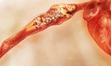 Zatkane tętnice? Jak odwrócić ten proces?