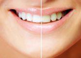 Lampa wybielająca zęby Beyond - efekty i ceny