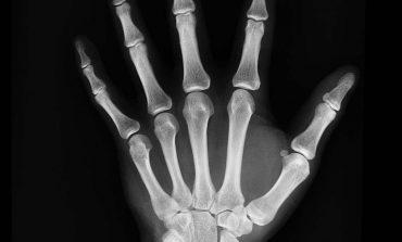 Wapń i witamina D3 sposobem na przeciwdziałanie osteoporozie