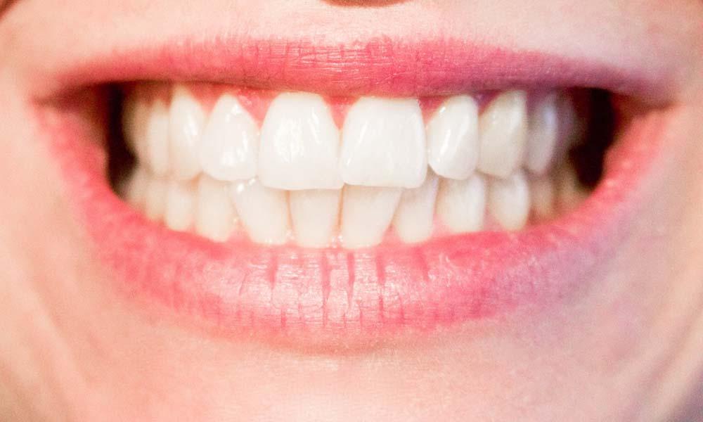 Aparat ortodontyczny – który jest najlepszy?