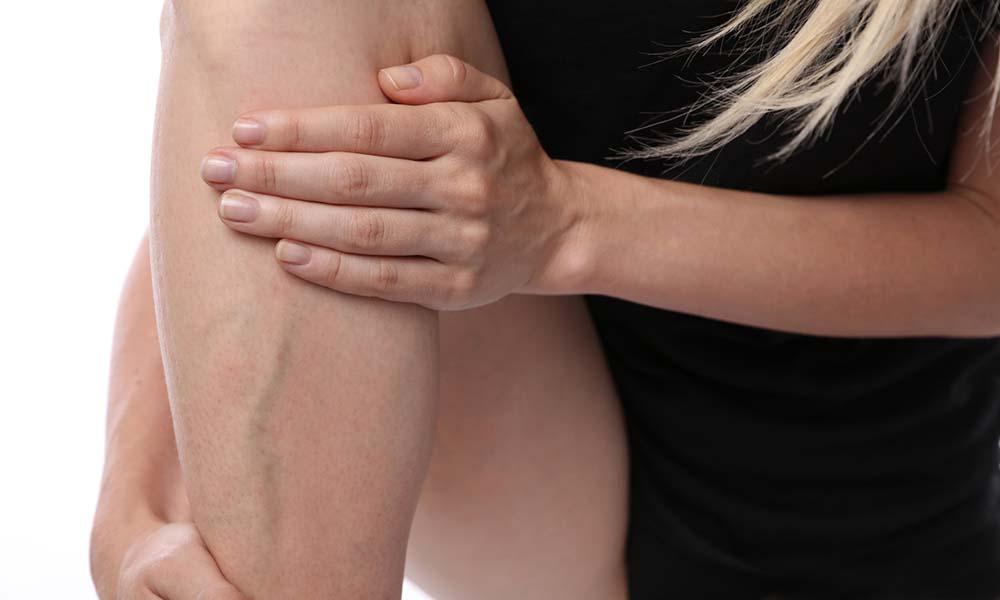 Jak zapobiegać żylakom nóg? Co robić, aby mieć zdrowe nogi