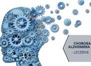 Choroba Alzheimera - leczenie