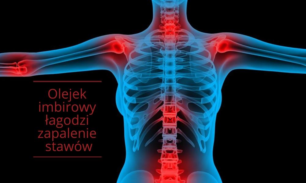 Olejek imbirowy zmniejsza przewlekły ból stawów