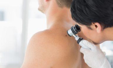 Forma witaminy B3 znacznie zmniejsza ryzyko raka skóry